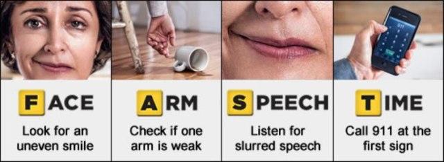 plb_stroke,tanda_tanda